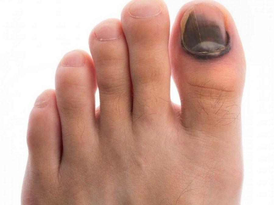 Rimedi per l'unghia nera dei piedi