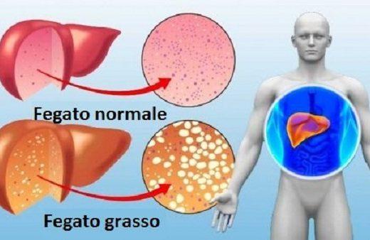 Fegato ingrossato sintomi